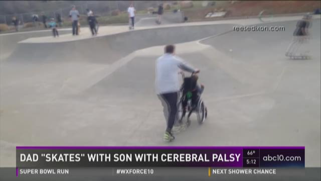 Viral video shows Sacramento dad skating with son who has cerebral palsy