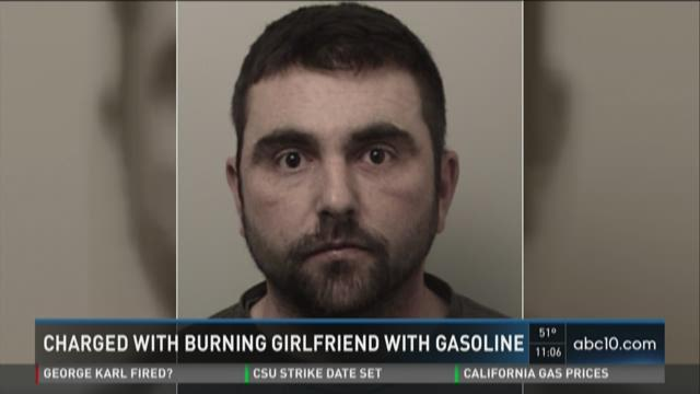 Man charged for allegedly burning girlfriend with gasoline after argument