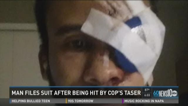 Man files suit after being hit by cop's Taser